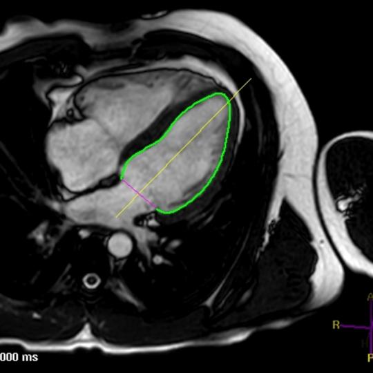 Kardio MRT mit Schnittberechnung